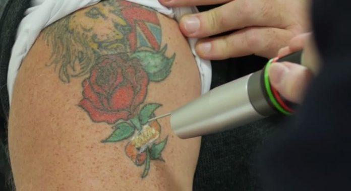 Re-Tattoo Procedure